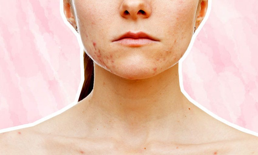 Excellent treatment of the acne and acne scars to the skin of a patient