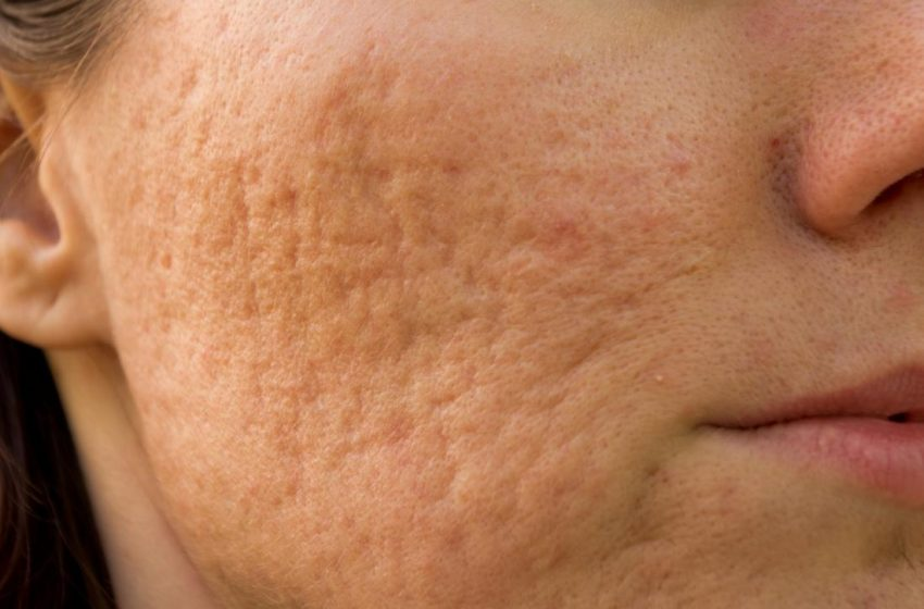 Is it possible to cure the holes and marks caused by pimples?