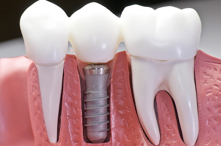 What are the best dental implant materials?