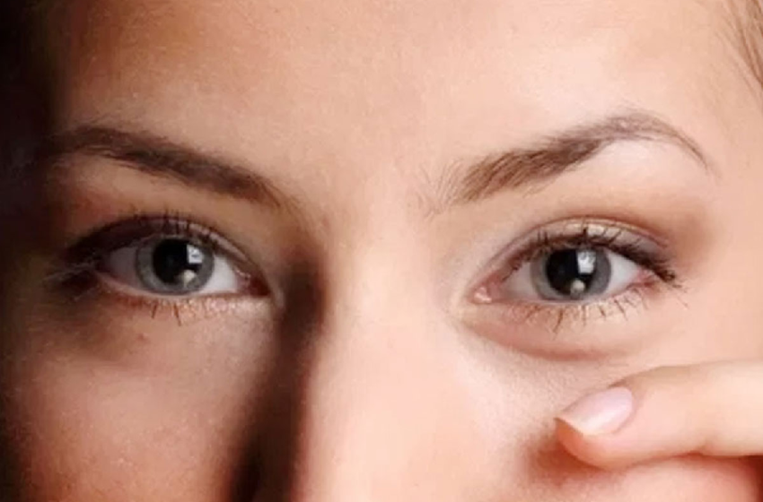 Symptoms and Treatment for Cholesterol Accumulation in the Eyes